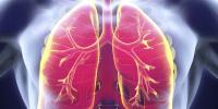 Polmonite da aspirazione: cause, sintomi e trattamento